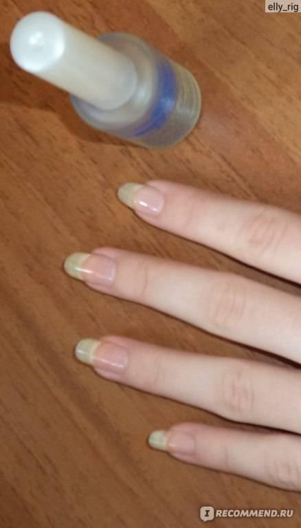 Можно ли беременным делать шеллак, красить ногти, наращивать или покрывать их гель-лаком