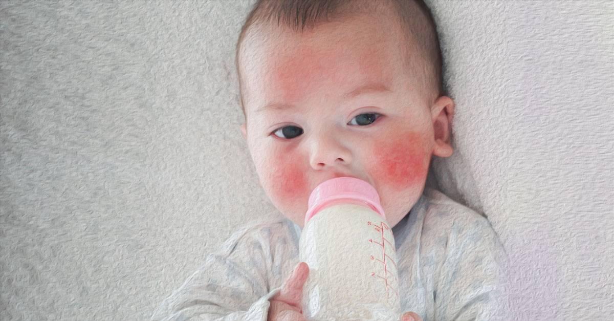 Аллергия на кисломолочные продукты у грудничка: причины реакции на кефир и сметану