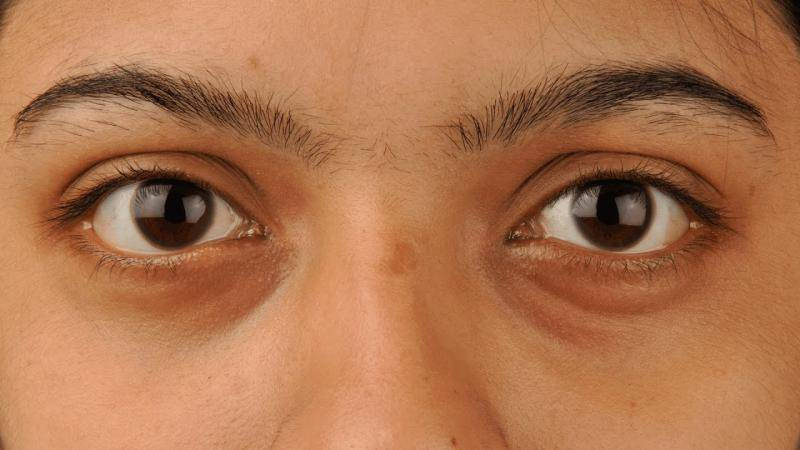 Тёмные круги и синяки под глазами - причины возникновения и методы коррекции.