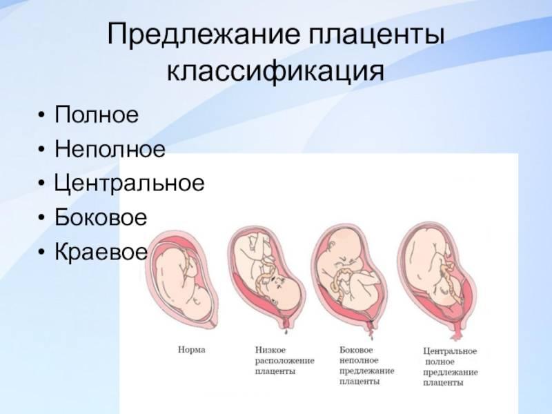 Плацента по передней стенке матки
