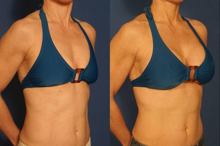 Обвисла грудь после родов и кормления, после похудения, что делать, как подтянуть | азбука здоровья