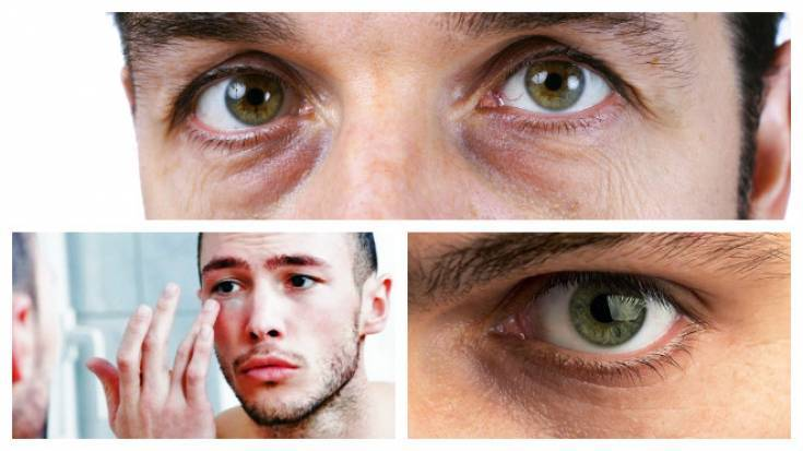 Как убрать темные круги под глазами