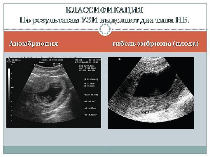 Возможна ли беременность после замершей беременности?
