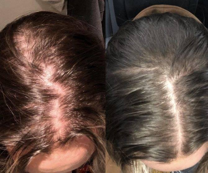 Почему выпадают волосы и как остановить выпадение волос – советы врача-трихолога | портал 1nep.ru
