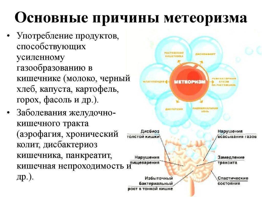 Вздутие живота (метеоризм)