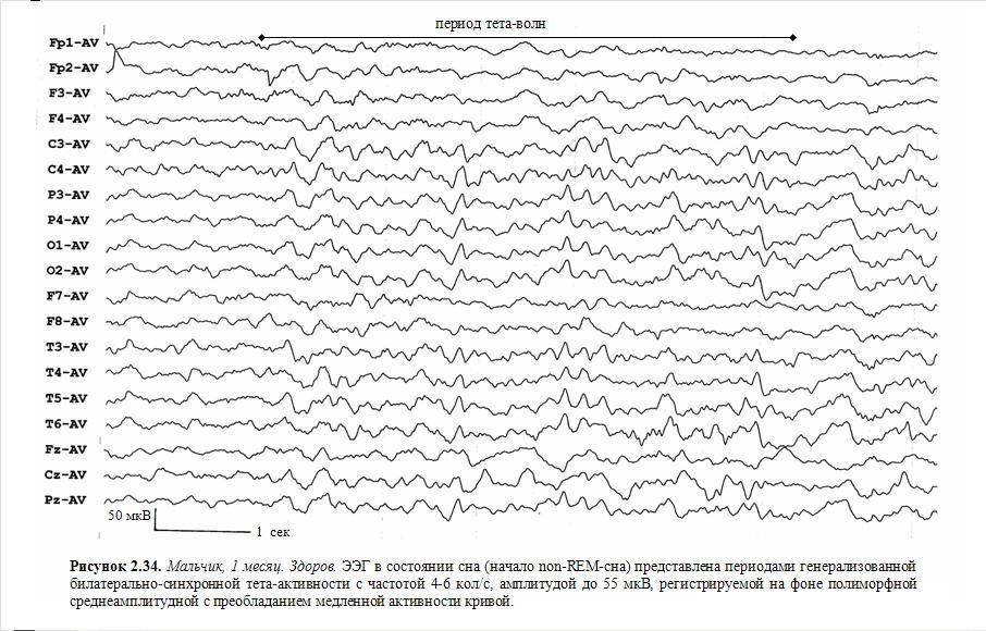 Рутинная ээг головного мозга от 30 до 60 минут | центр диагностики и лечения эпилепсии в москве epihelp