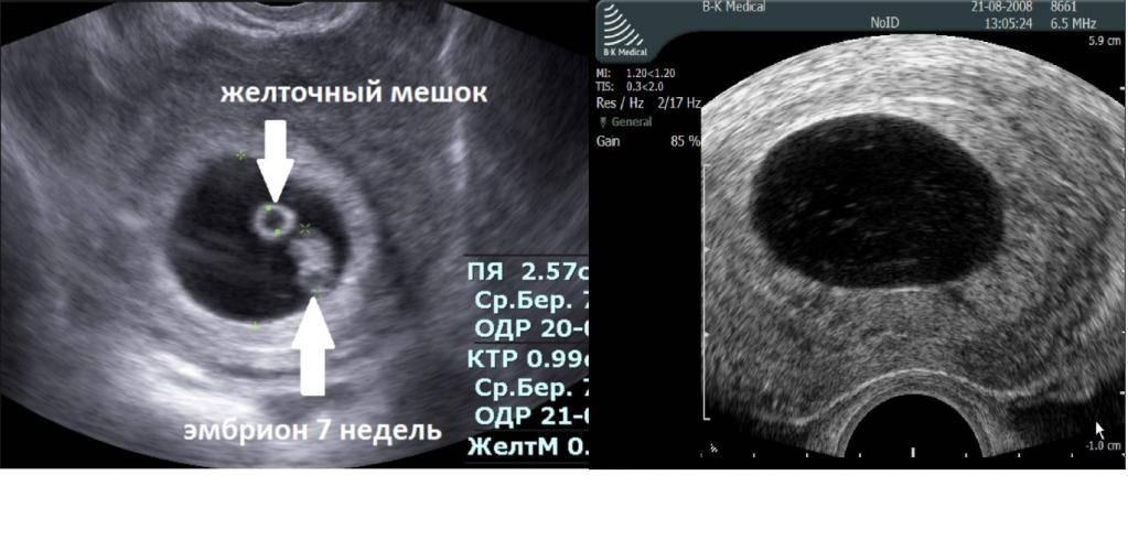 """Анэмбриония ᐉ диагностика, лечение в мц """"боголюбы"""", луцк"""