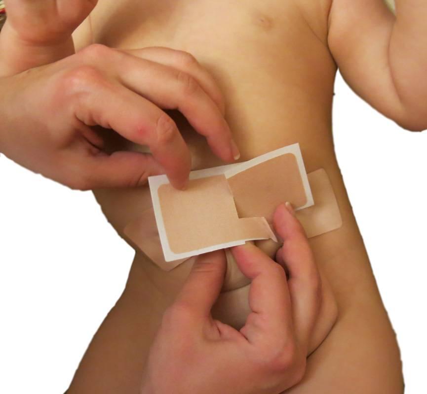 Хирургическое лечение грыжи с использованием сетчатых имплантов