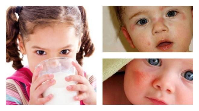 Есть ли лактоза в кефире, твороге и других кисломолочных продуктах?  — нескучные домохозяйки