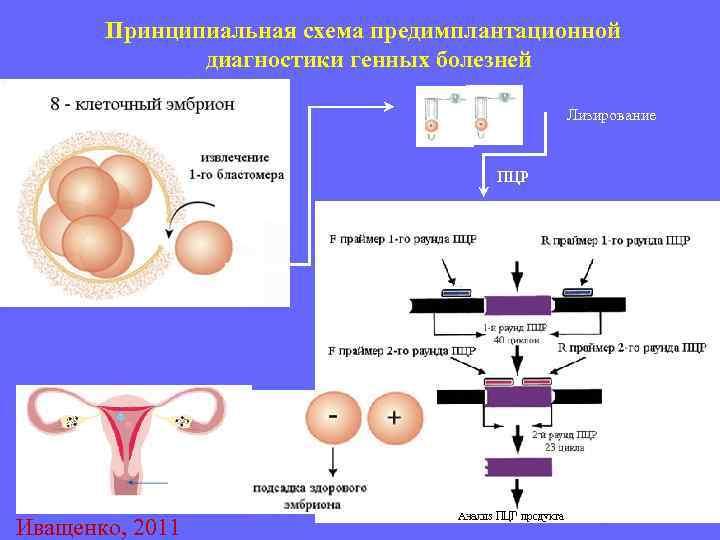 Генетические анализы при планировании беременности