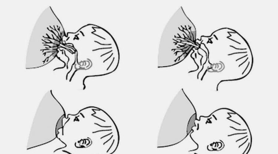 Можно ли делать мрт при грудном вскармливанииможно ли кормить грудью после?