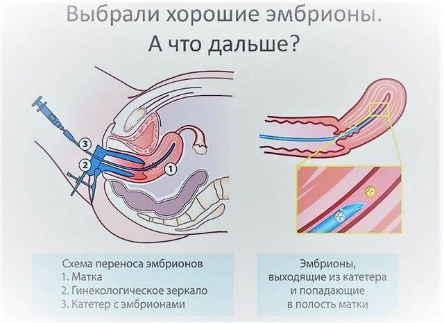 Прогестерон при эко