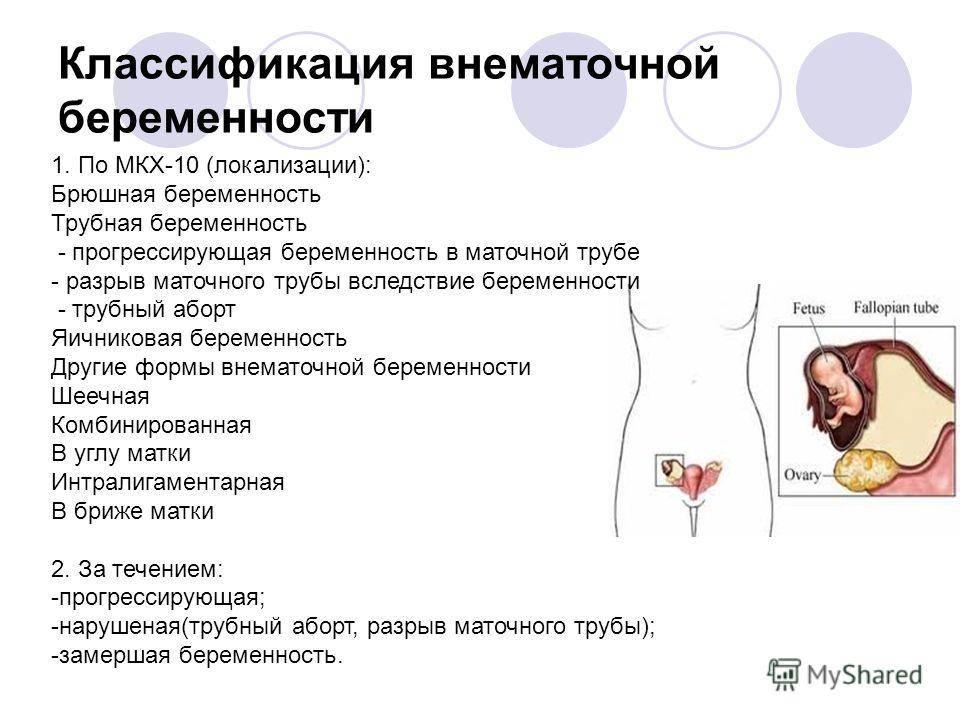 Признаки беременности