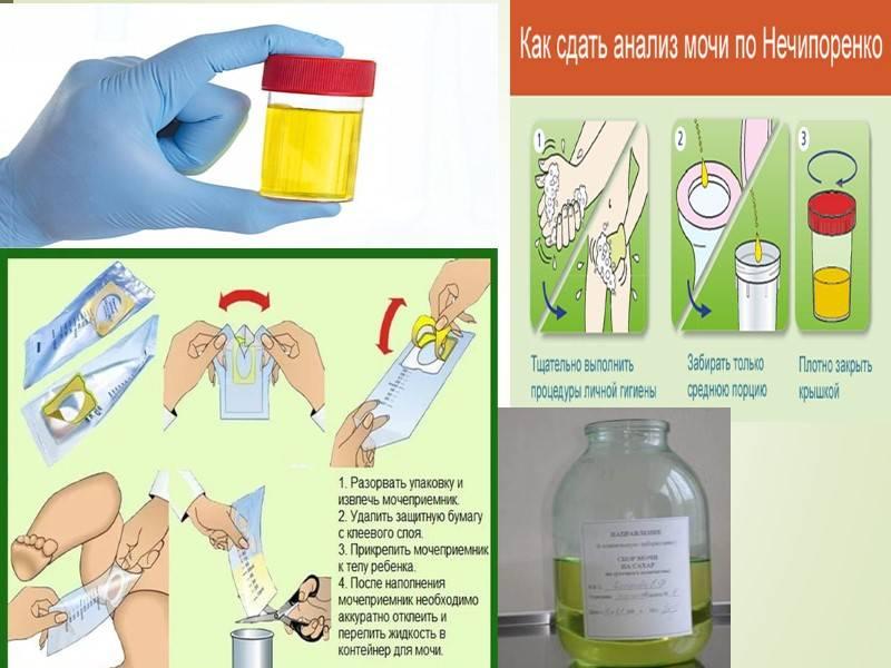 Химико-токсикологический анализ мочи (хти) в спб.