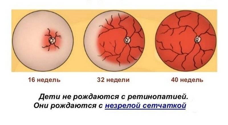 Ретинопатия недоношенных. лечние ретинопатии новорожденных детей. баранов артур викторович.