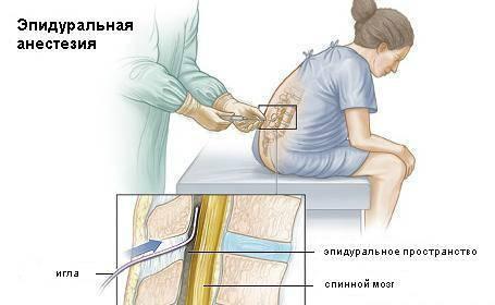 Эпидуральная и спинальная анестезия. преимущества и недостатки региональной анестезии.