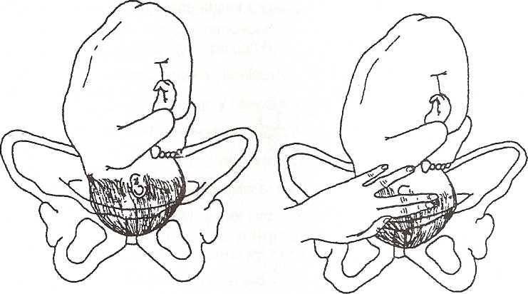 Ребенок опустился в таз: когда роды, какой аппетит перед ними, как понять, что плод прижат головкой?