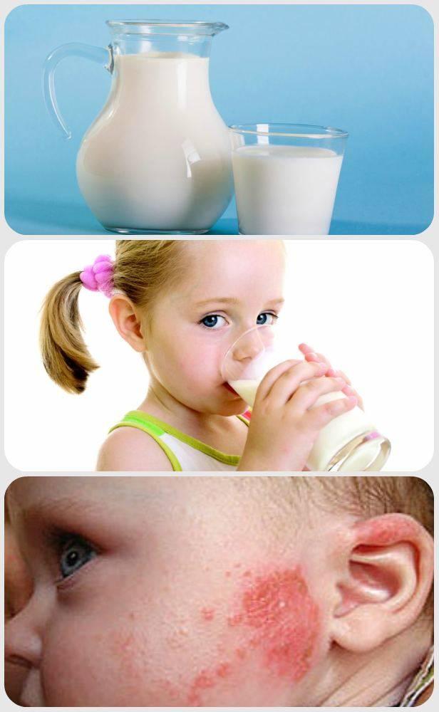 Можно ли кефир, молоко и другие молочные продукты при подагре?