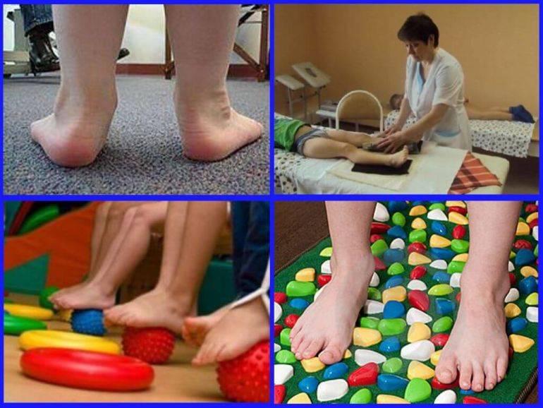 Деформация стопы у детей - лечение вальгусной и варусной деформации в клинике санкт-петербурга