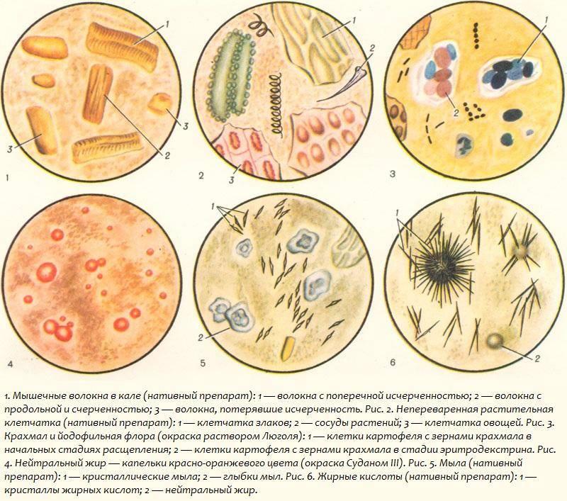 Йодофильная флора в кале у ребенка, бактерии в копрограмме у взрослого - kardiobit.ru
