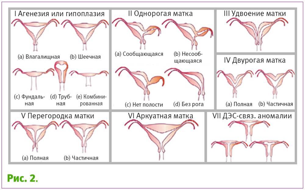 Раздвоение матки. причины. симптомы и лечение!