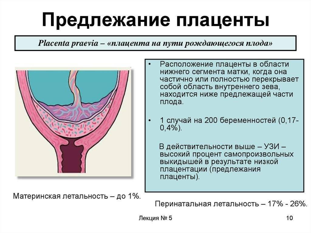 Ицн при беременности: страхи и реальность - центр перинатального здоровья