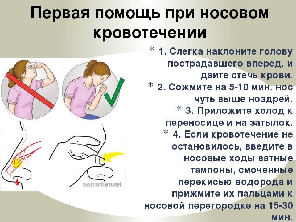 Кровотечение при месячных: причины сильной кровопотери, признаки и лечение обильного кровотечения