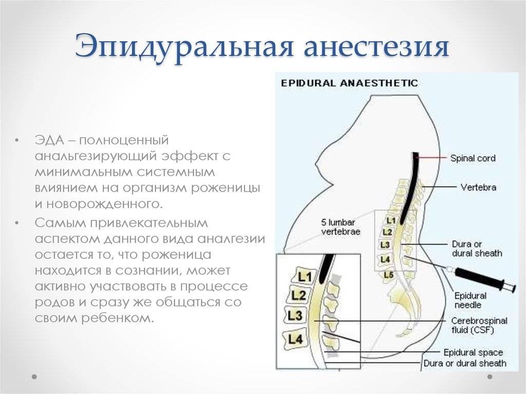 Эпидуральная анестезия при родах: плюсы и минусы, возможные последствия