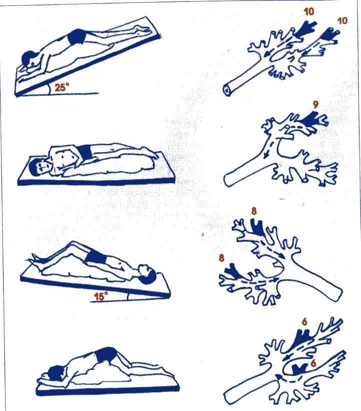 Как делать массаж при бронхите? методика и техника выполнения в домашних условиях