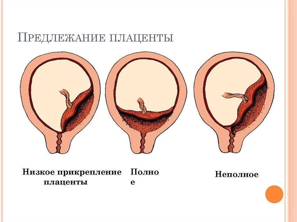 Оболочки плода, плацента | eurolab | гинекология