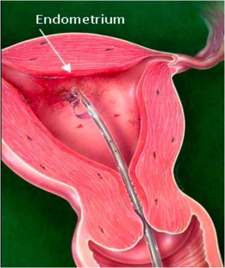 Лечение возрастного эндометриоза