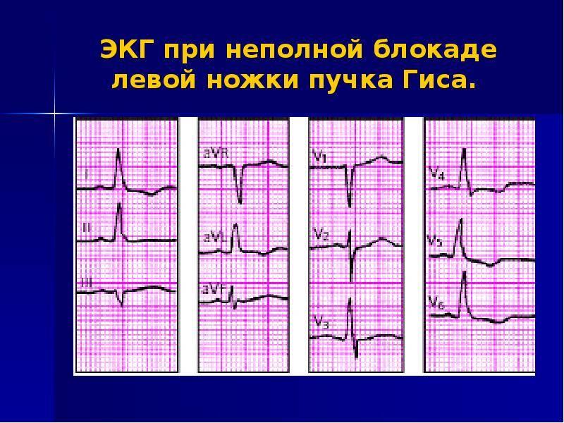 Блокады сердца у детей - симптомы болезни, профилактика и лечение блокад сердца у детей, причины заболевания и его диагностика на eurolab