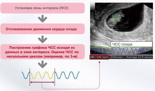 Можно ли по частоте сердцебиения плода определить пол будущего ребенка, у кого чсс больше – у мальчика или девочки