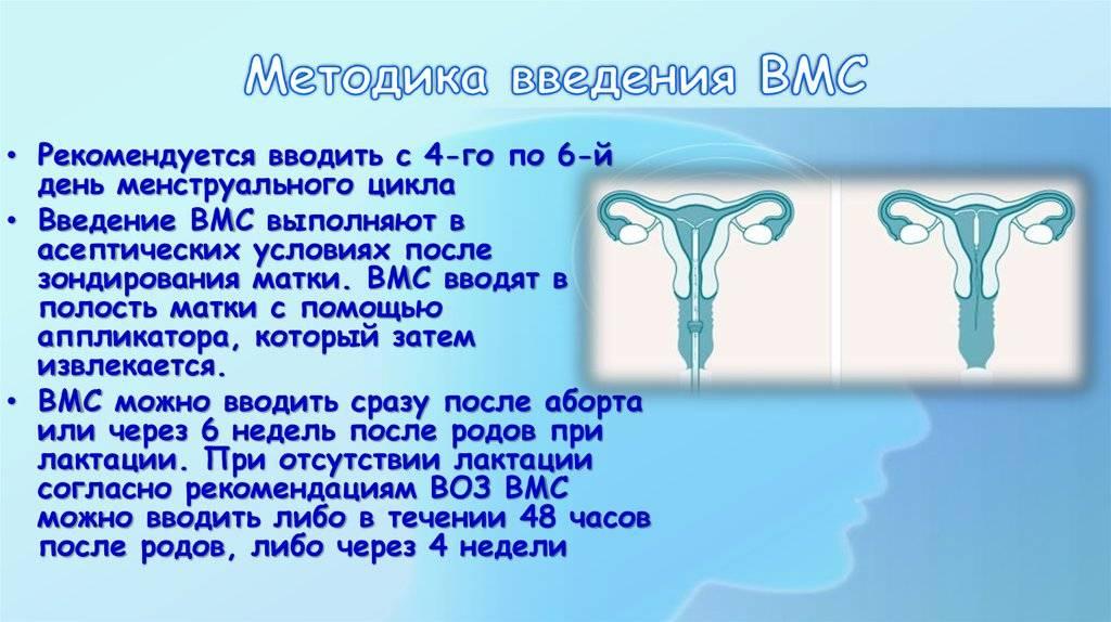 Минусы внутриматочной спирали (вмс)