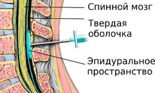 Эпидуральная и спинальная анестезия и общий наркоз при плановом кесаревом сечении