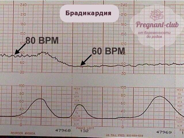 Пренатальная (дородовая) диагностика врожденной патологии плода