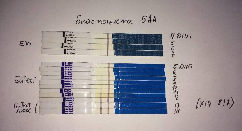 Экстракорпоральное оплодотворение: этапы по дням цикла