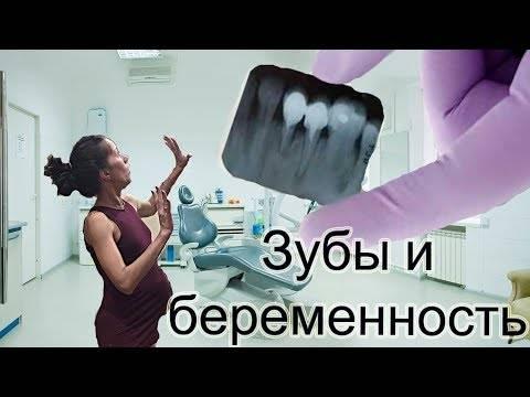 Можно ли делать рентген зубов беременным женщинам?