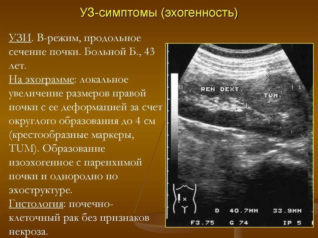 Дырявый кишечник — миф или реальность