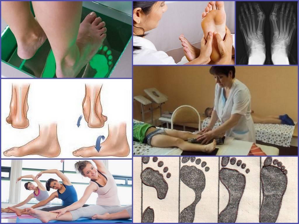 Плоско-вальгусная деформация стопы – как лечить