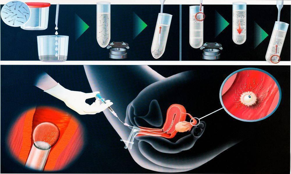 Внутриматочная искусственная инсеминация - доктор ншанян