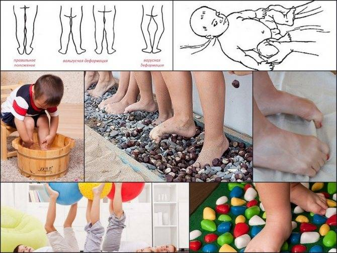 Техника массажа для детей при вальгусной деформации стопы в домашних условиях - proinfospine