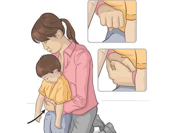 Обструкция. что делать, если ребенок задыхается     материнство - беременность, роды, питание, воспитание