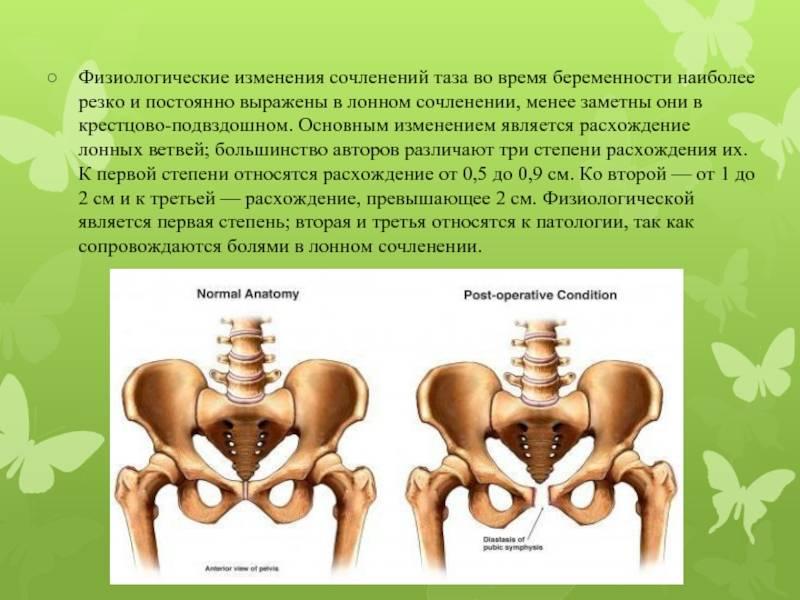 Расхождение костей таза при беременности: за сколько до родов начинается, с какими признаками?