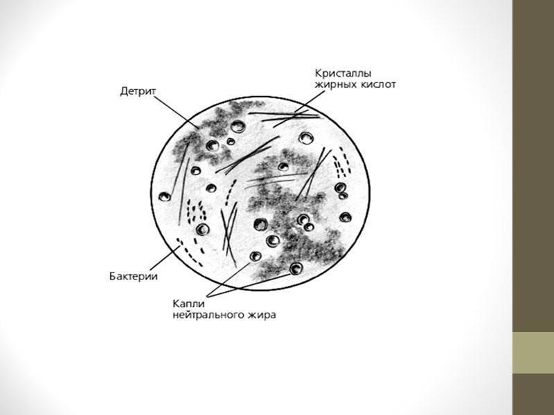 Содержание лецитиновых зерен в соке простаты норма и отклонения