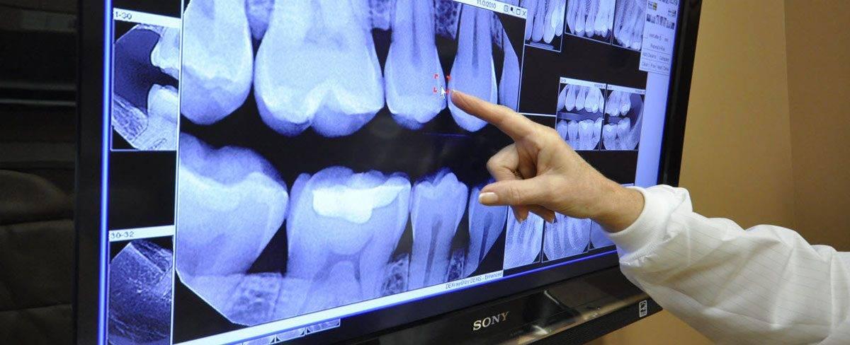 Этапы имплантации зубов - от консультации врача до красивой улыбки
