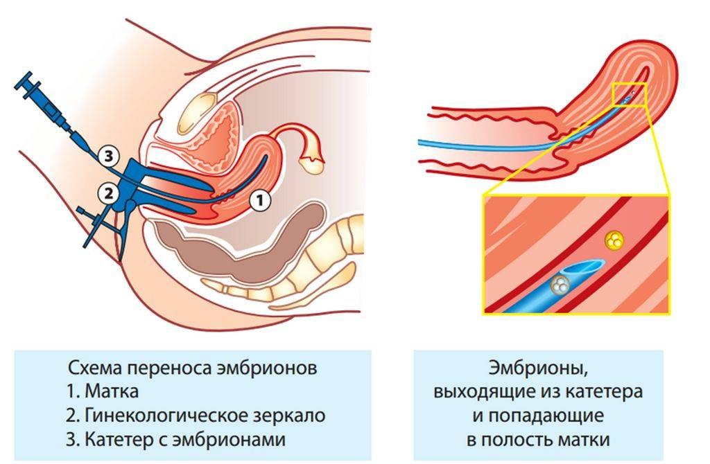 Физиотерапия перед эко
