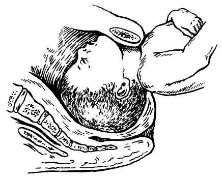 Кесарево сечение | сроки проведения, плановое кесарево
