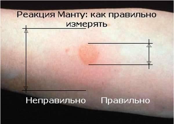 Как измерить манту у ребенка: правильно, проверка пробы, как меряют размер папулы на линейке, реакцию на прививку, самостоятельно в домашних условиях, у детей 1 года