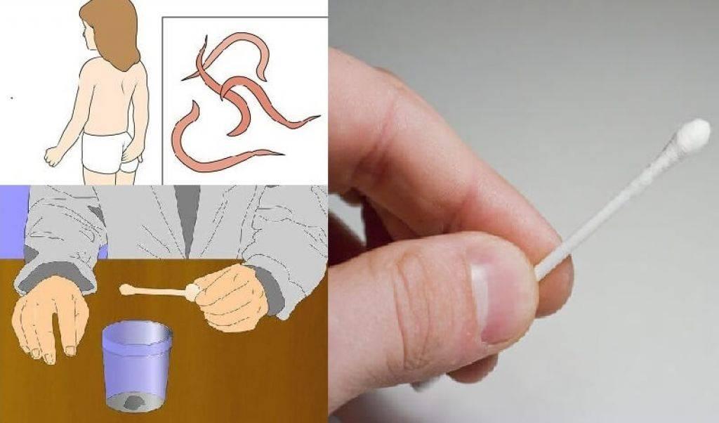 Анализ на энтеробиоз                                            (соскоб на энтеробиоз)